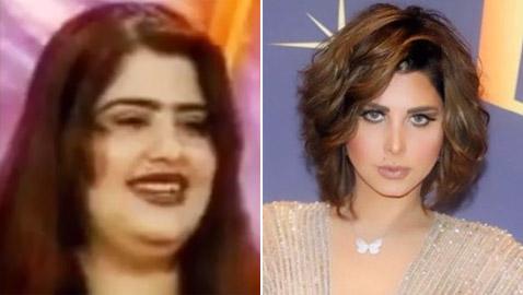 مي العيدان تفضح شمس الكويتية وتنشر صورتها قبل وبعد التجميل! ماذا قالت؟